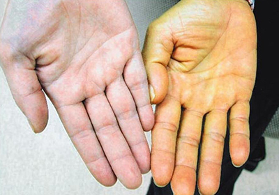 Цены на гепатит а в с донецк