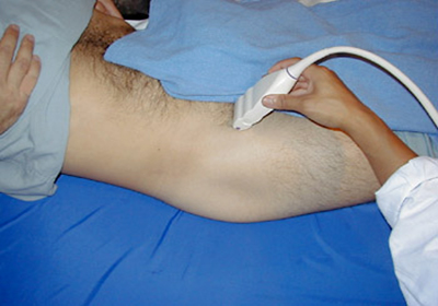 Узи тазобедренных суставов севастополе лечение хламидиоза в коленных суставах